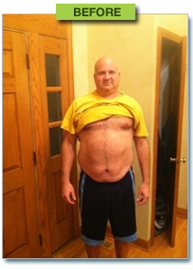 medical weight loss before picture from libertyville, illinois
